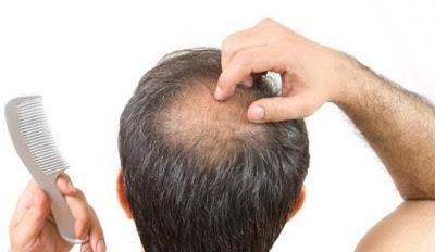 Cara Terbaik Menumbuhkan Rambut dengan Cepat kulit kepala