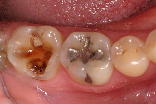Penyakit periodontal Saat bakteri tumbuh