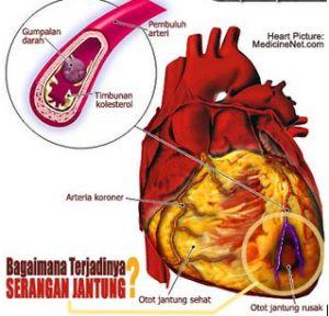 Takotsubo Cardiomyopathy - Pengobatan Herbal Ayurveda kematian pasien jika tidak
