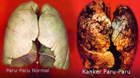 Tanda Awal Kanker Paru - Apa Gejala Paling Umum dari Kanker Paru gejala tersebut dan melaporkannya